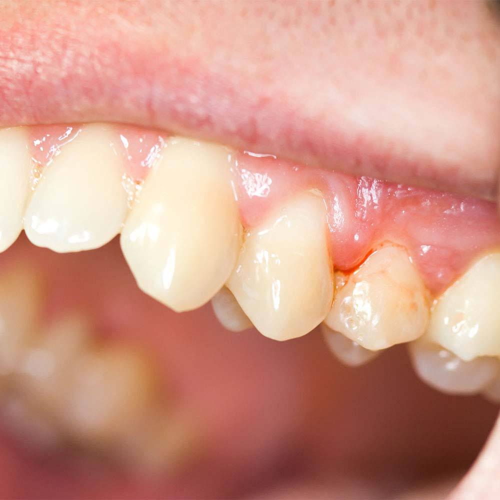 Gingivitis (Gum Disease): Symptoms, Causes, Treatments & FAQ 18