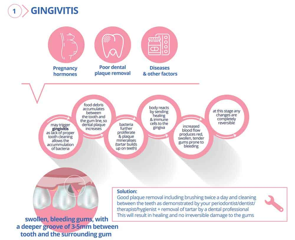 Gingivitis (Gum Disease): Symptoms, Causes, Treatments & FAQ 5