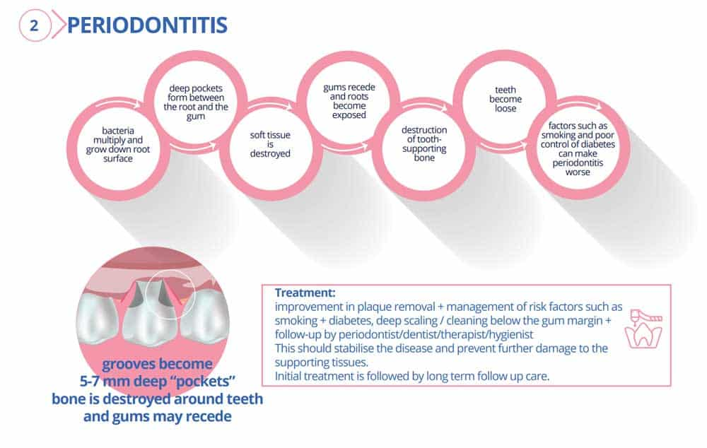 Gingivitis (Gum Disease): Symptoms, Causes, Treatments & FAQ 8