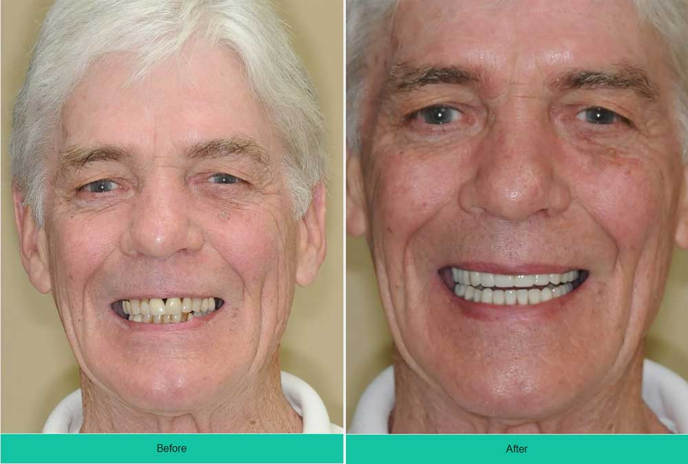 Denture Implants & Implant Retained Dentures: Procedure, Costs & FAQ 23