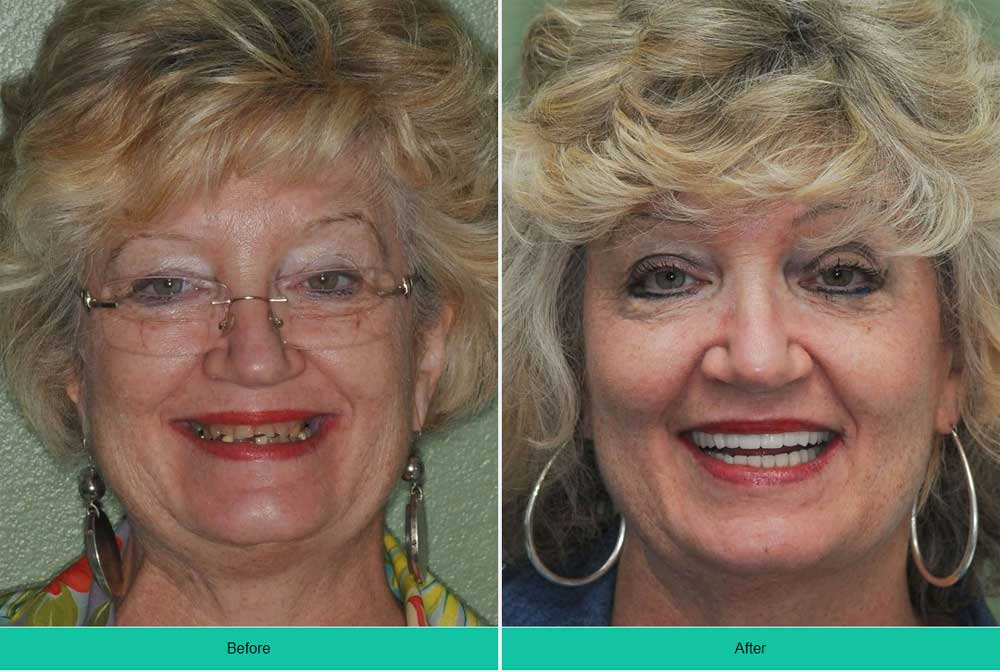 Denture Implants & Implant Retained Dentures: Procedure, Costs & FAQ 24
