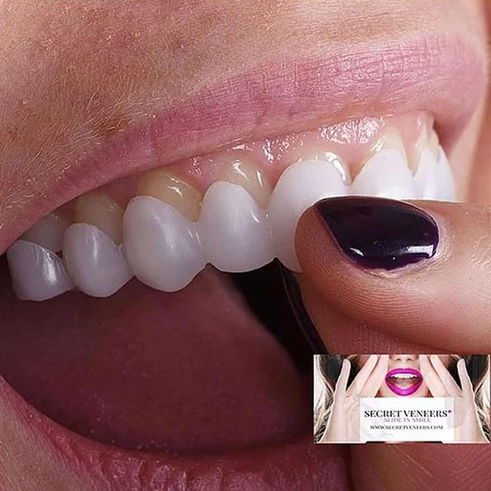Top veneers clipping on to teeth