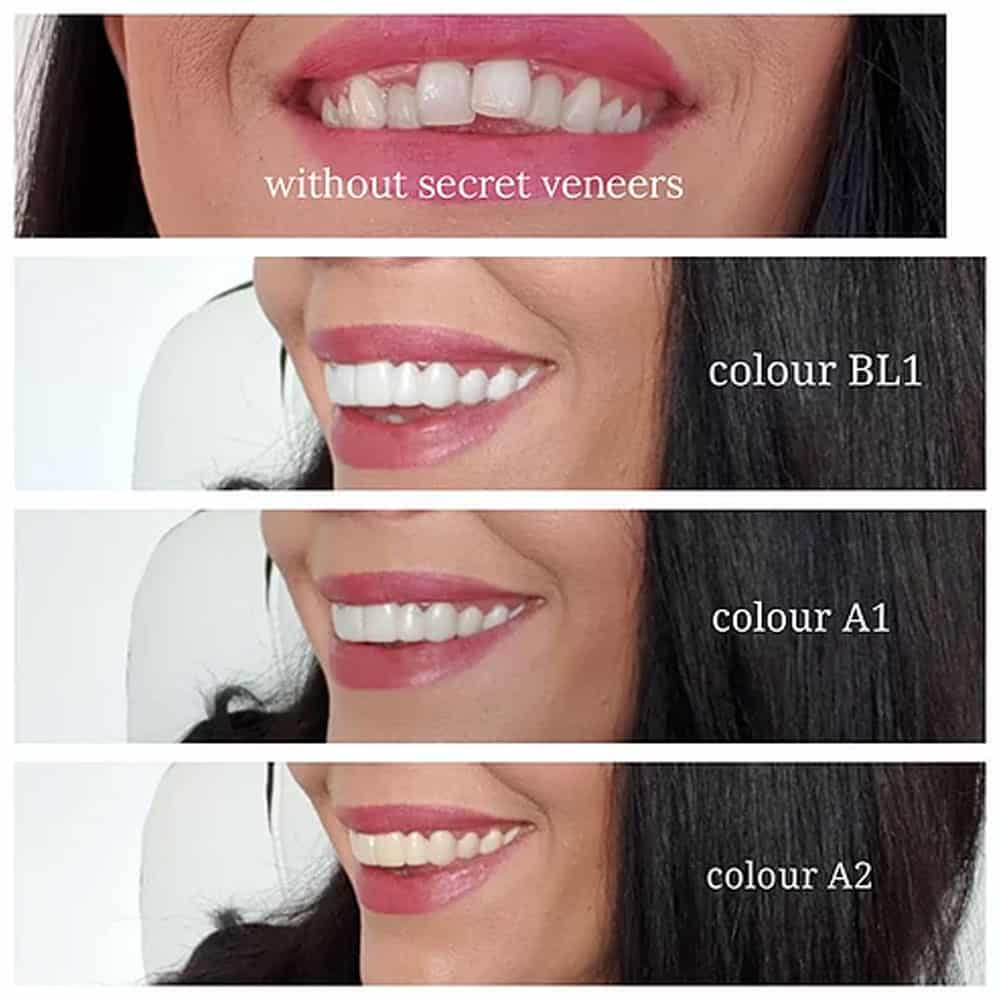 Secret Veneers photo showing color scale available